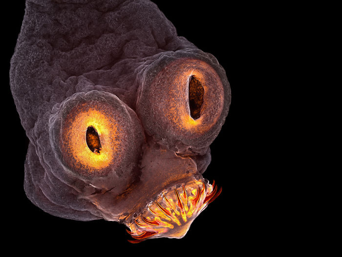 The Head Of A Pork Tapeworm, New York, 4th Place