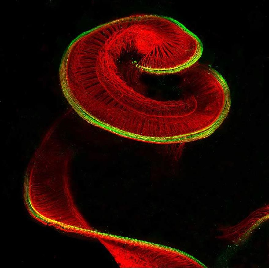 Newborn Rat Cochlea With Sensory Hair Cells (Green) And Spiral Ganglion Neurons (Red), Bern, 8th Place