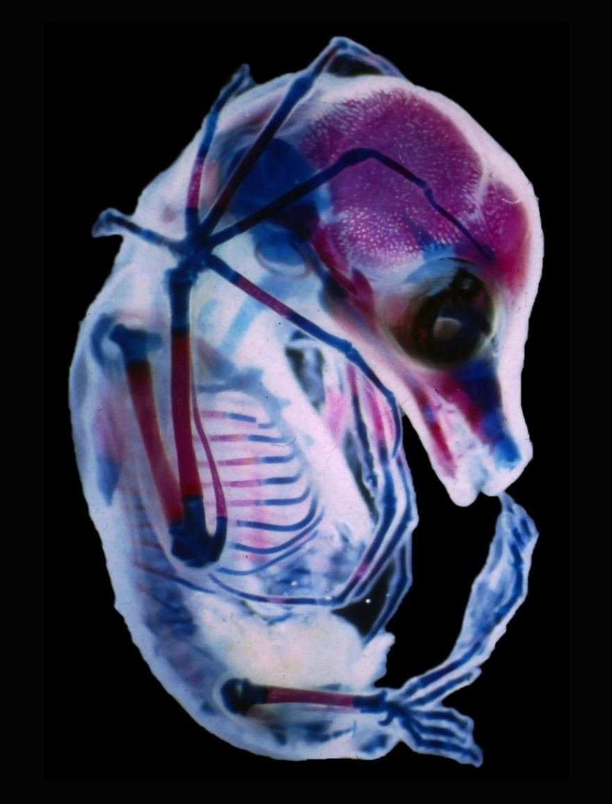 3rd Trimester Fetus Of Megachiroptera, Colorado, 15th Place