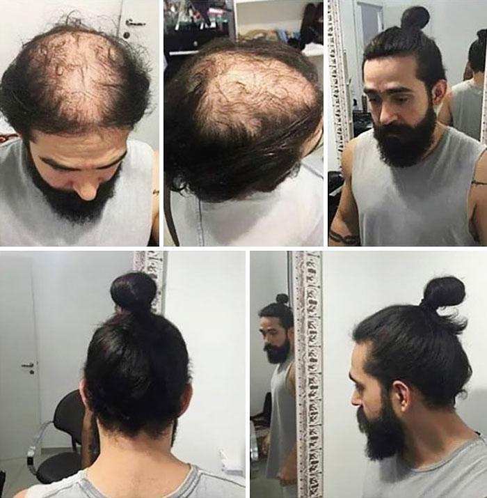 Hide Baldness With A Bun