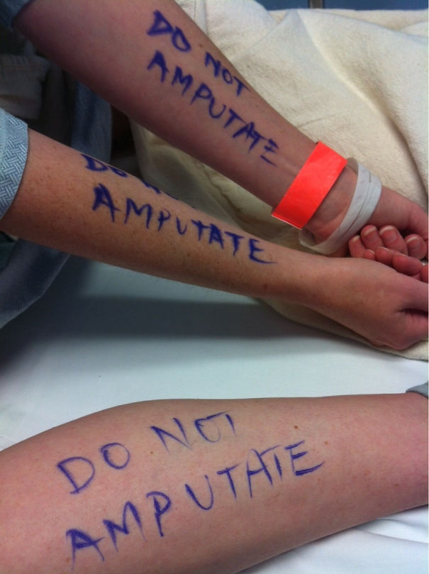 Had Minor Surgery Today. My Husband Didn't Want To Take Any Chances So He Wrote Instructions On My Arms And Legs