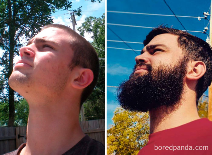 Before And After. If Anyone Tries To Tell You That Beards Are A Bad Thing, Look What It Did For Me. Left Was Late 2012, Right Was Election Day 2016