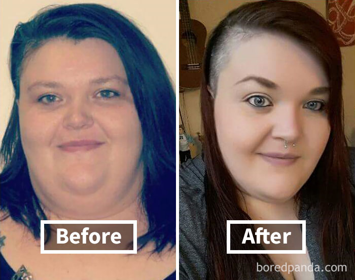Will losing weight help a double chin