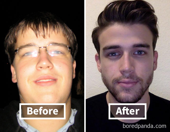 30 pound weight loss face pictures