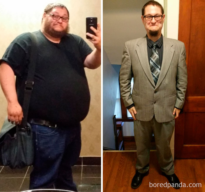 In The Last Year I Have Lost Over 200 Lbs From Exercise And Gastric Sleeve Surgery