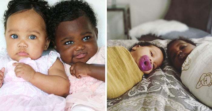 Girls Born In Different Colors Make It Nearly Impossible To Tell They Are Twins