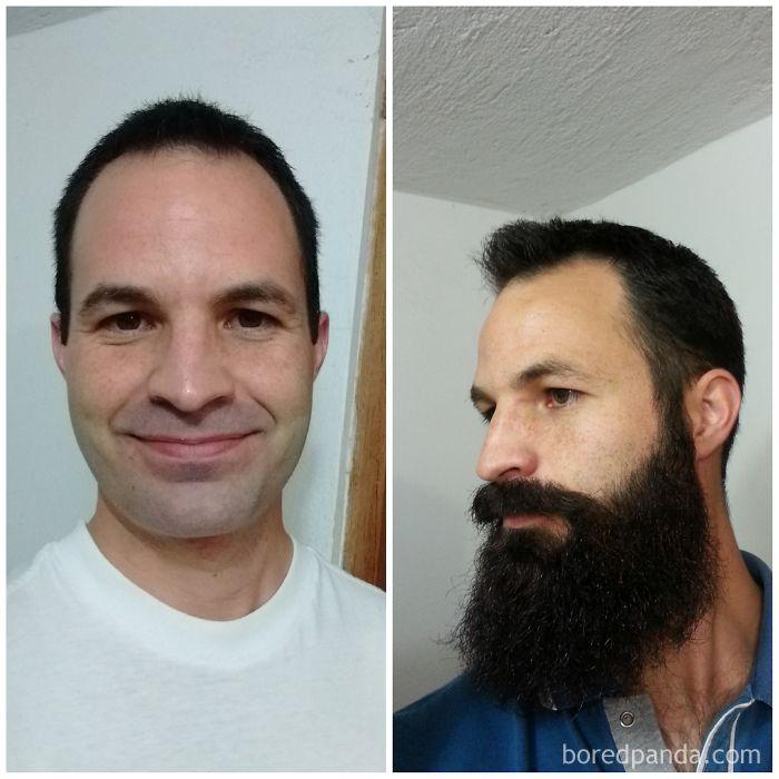 9 Months Beard