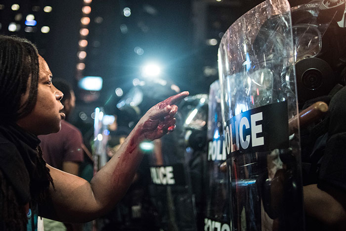 With Blood Covering Her Hand And Arm, A Woman Points At A Police Officer In Charlotte, Nc, 21 September 2016