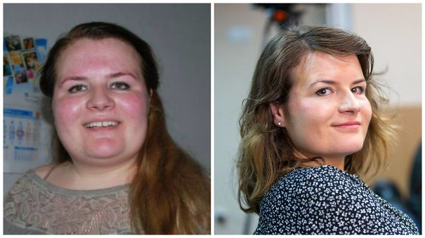 128 Amazing Before & After Pics Reveal How Weight Loss ...