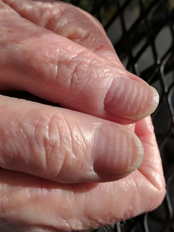 After Six Rounds Of Chemotherapy, My Mother-In-Law's Nails Look Like Tree Rings