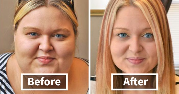 50+ Amazing Before & After Pics Reveal How Weight Loss ...