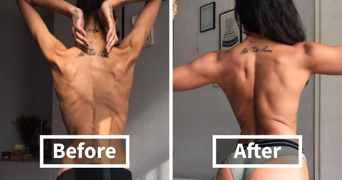 120 Before & After Pics Of People Who Defeated Anorexia