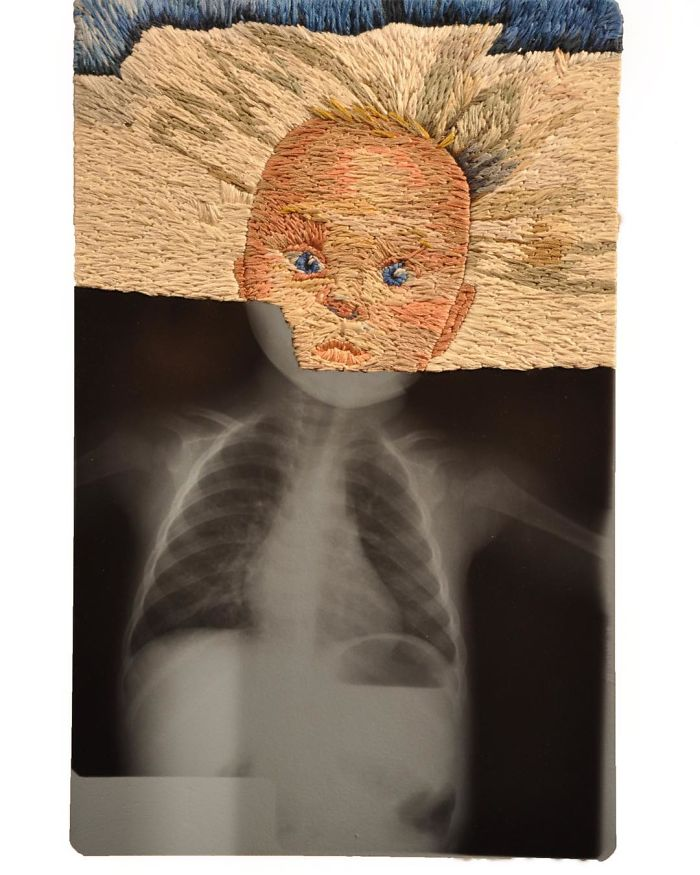 This Artist Creates Incredible Boraddos On Medical X-Rays