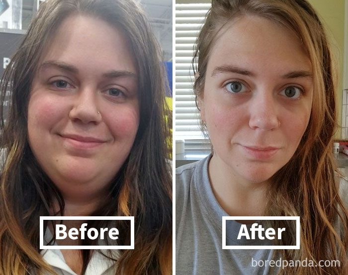 50+ Amazing Before& After Pics Reveal How Weight Loss Affect Your Face