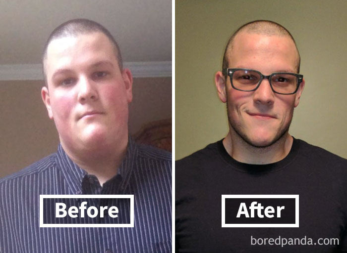 128 Amazing Before After Pics Reveal How Weight Loss Changes Your Face Bored Panda