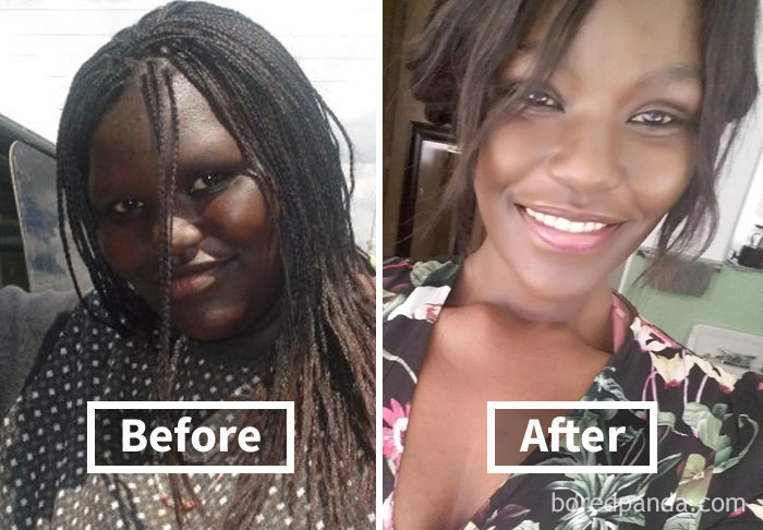 50+ Amazing Before& After Pics Reveal How Weight Loss Affects Your Face