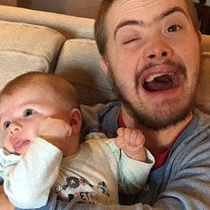 El Síndrome de Down casi ha sido eliminado en Islandia, y las reacciones de la gente son descorazonadoras
