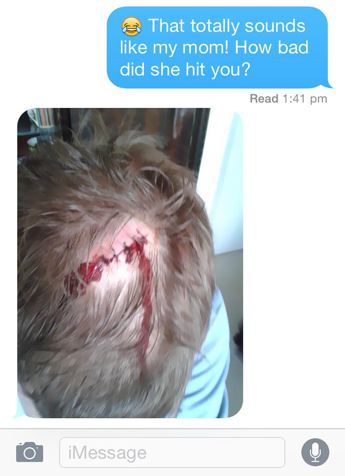 friend-mom-hit-head-2