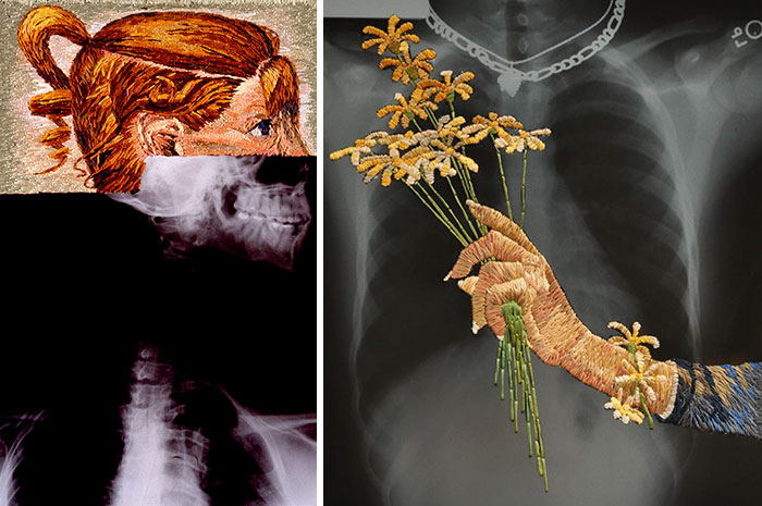Artist Embroiders X-Rays And It's Beautiful And Creepy At The Same Time