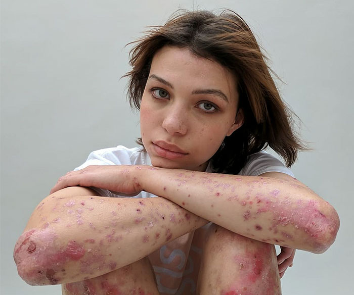 People Reveal Their Scars And How They Got Them In A Powerful Photo Project