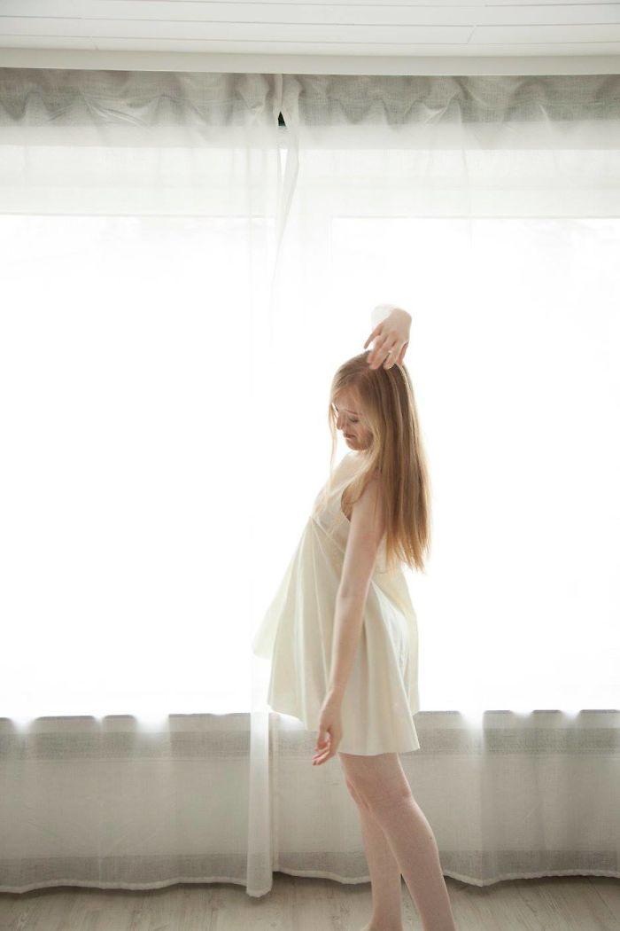 Model-Breaking-Beauty-Standards-Ilka-Bruhl