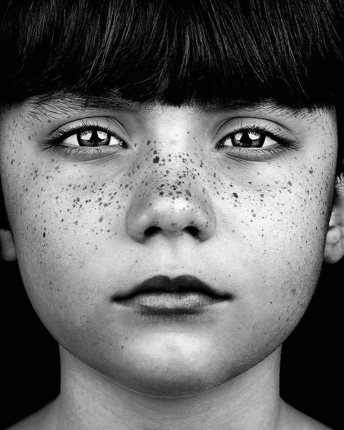 The Beauty Of The Freckles By The Photographer Brock Elbank