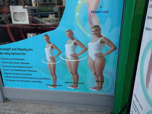 This Is On A Window In London. It's Supposed To Promote Some Weight Loss/diet Thing The Image Of The Woman Was Just Stretched In Photoshop