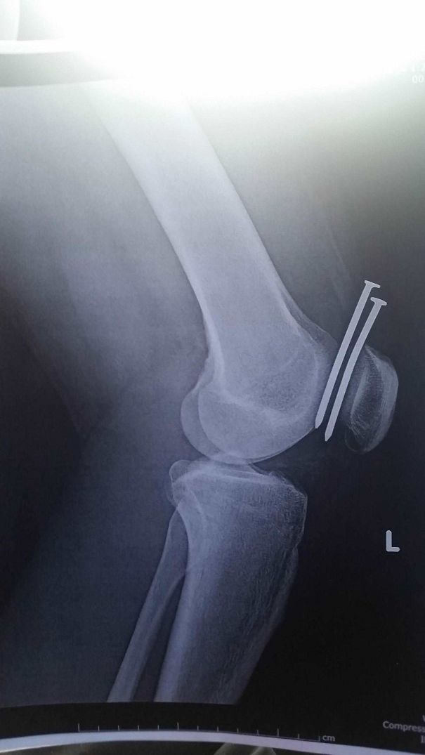 This Guy Had Two Nails From A Nail Gun Hit His Leg, And They Both Missed His Femur And His Kneecap