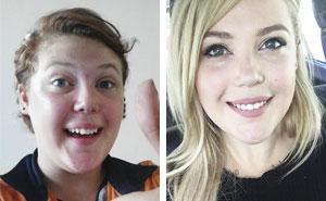 """Estas personas que solían ser """"patitos feos"""" comparten sus transformaciones, y son irreconocibles (Nuevas imágenes)"""