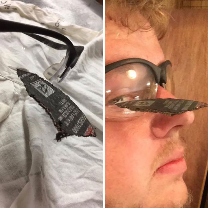 Las gafas de seguridad le salvaron el ojo tras explotar el disco angular de la lijadora