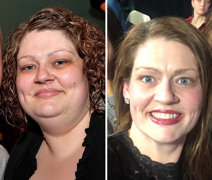 Nutritionist Advised Woman To Do These 3 Simple Things, And She Lost 150 Pounds