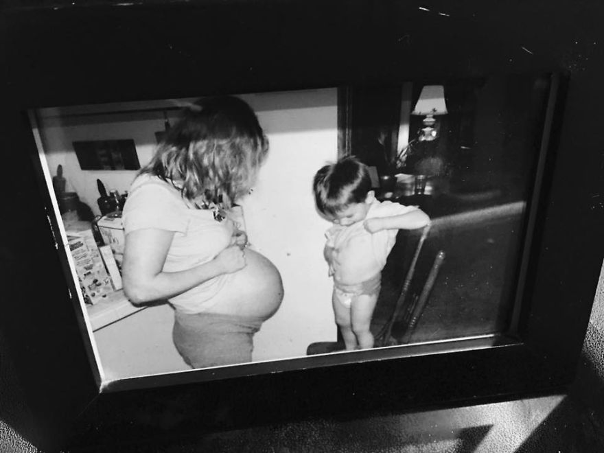 I Tried To Hide The Way Pregnancy Changed My Body Because I Was Embarassed