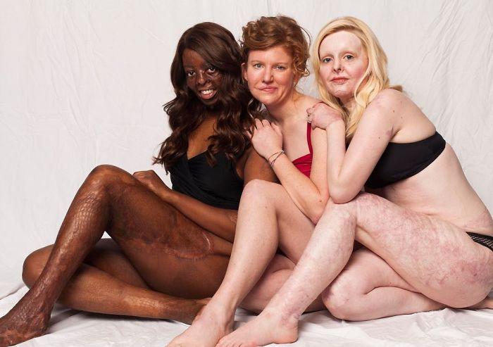 Love Disfigure Swimwear Photo Campaign