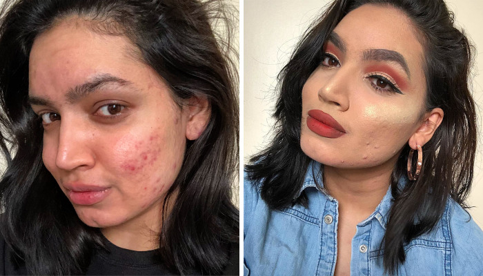 Woman Gets Dropped From L'Oréal's Campaign Because Of Her Acne, She Responds With A Powerfull Message