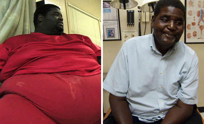 Henry Foots Was 750 Lbs, He Dropped To 250 Lbs