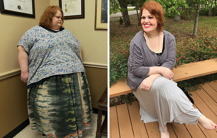 Nikki Webster Was 649 Lbs, She Dropped To 236 Lbs
