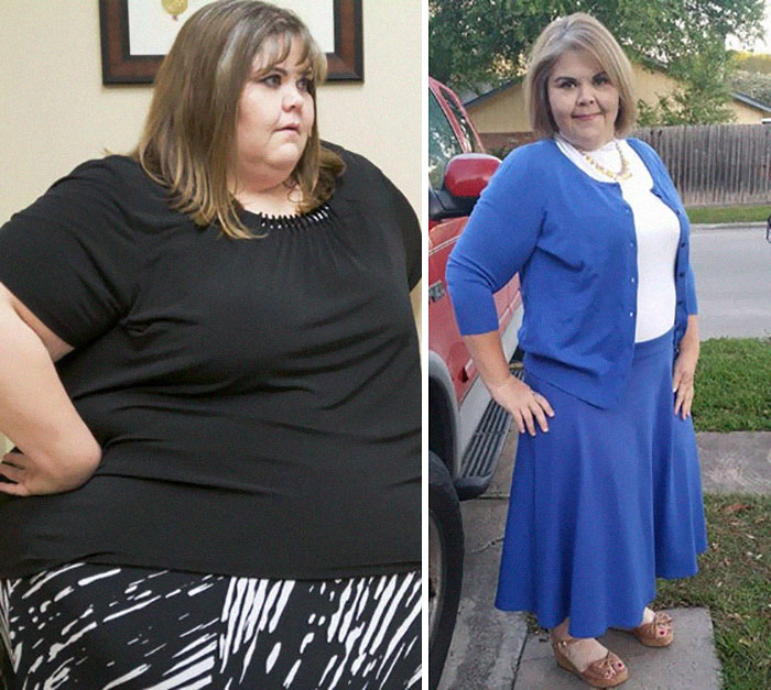 Zsalynn Whitworth Was 600 Lbs, She Dropped To 300 Lbs