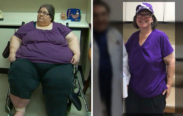 Diana Was 601 Lbs  She Dropped To 223 Lbs