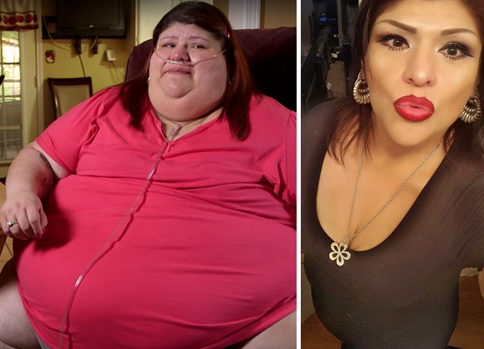 Laura Perez  Was  541 Lbs And She Dropped To 380 Lbs