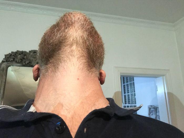 Male Pattern Baldness?