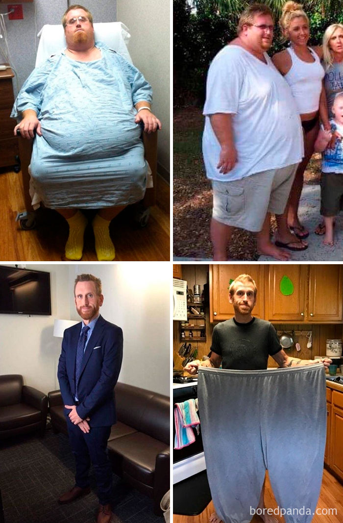 255 Unbelievable Before & After Transformation Pics That