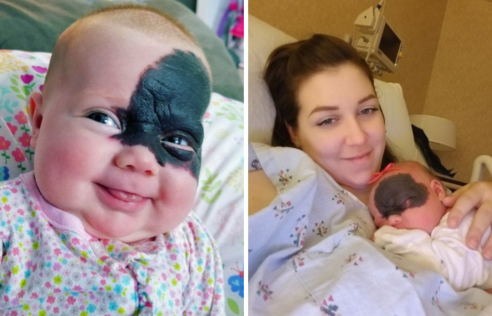 "This Baby Was Born With A Birthmark Which Turned Her Into ""Little Superhero"""