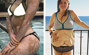 Estas 10+ mujeres ignoraron el bodyshaming y demostraron que todos los cuerpos son cuerpos de bikini