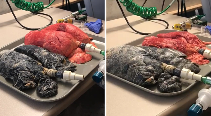Shocking Video Of Nurse Inflating Healthy Lungs Vs Smoker's Reveals What Cigarettes Really Do To You