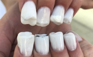 Teeth-Nails Exist, And If You Think They Can't Get Any Worse, Watch This Video