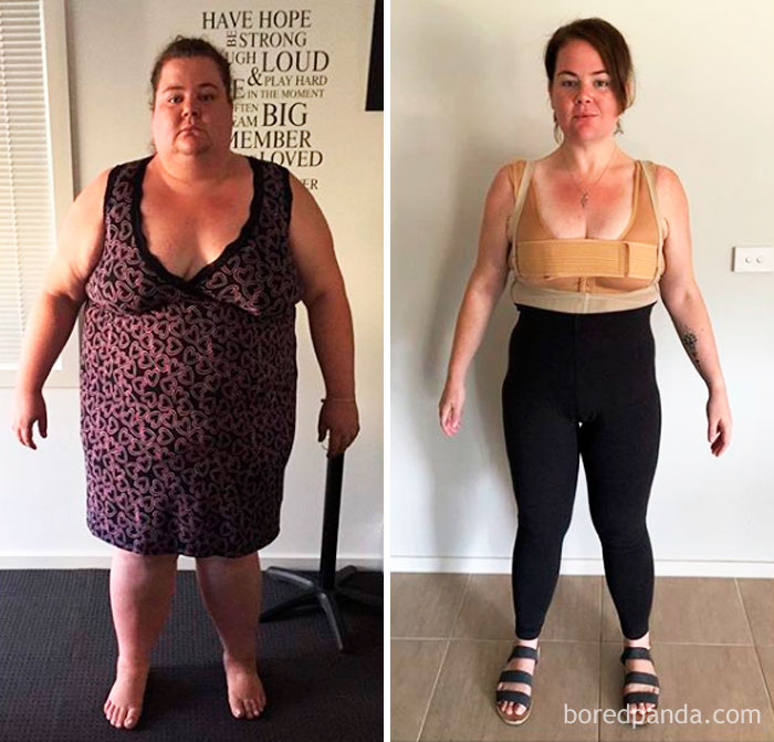 lost 222 lbs weight loss progress bored panda