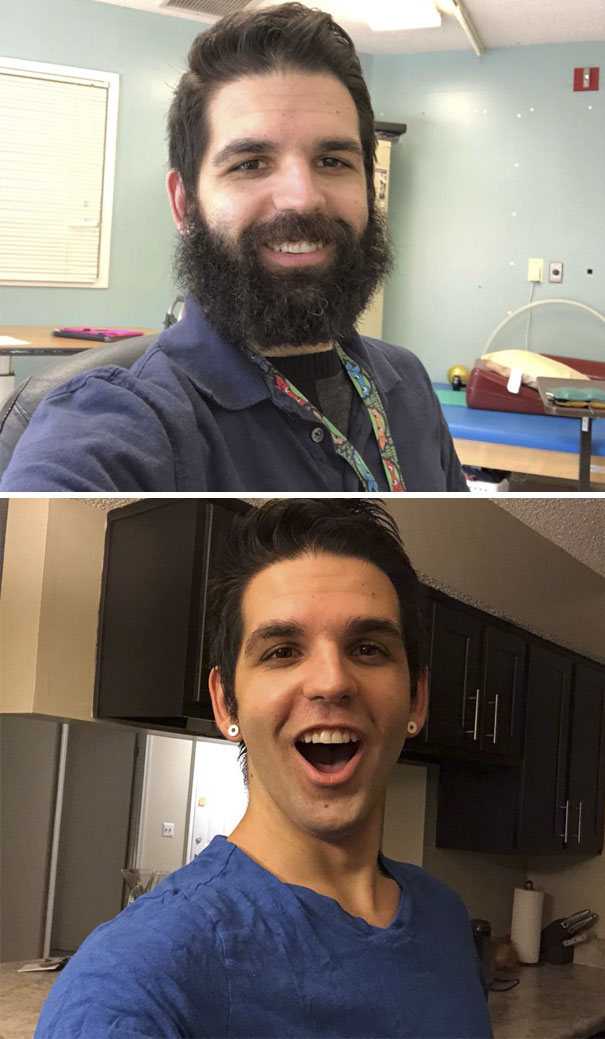I Work With Patients In Rehab. 2 Months Ago I Made A Bet With A Patient I Would Shave If We Could Get Him To Reach A Certain Goal. Today, He Did It. Tomorrow He Gets Baby Me
