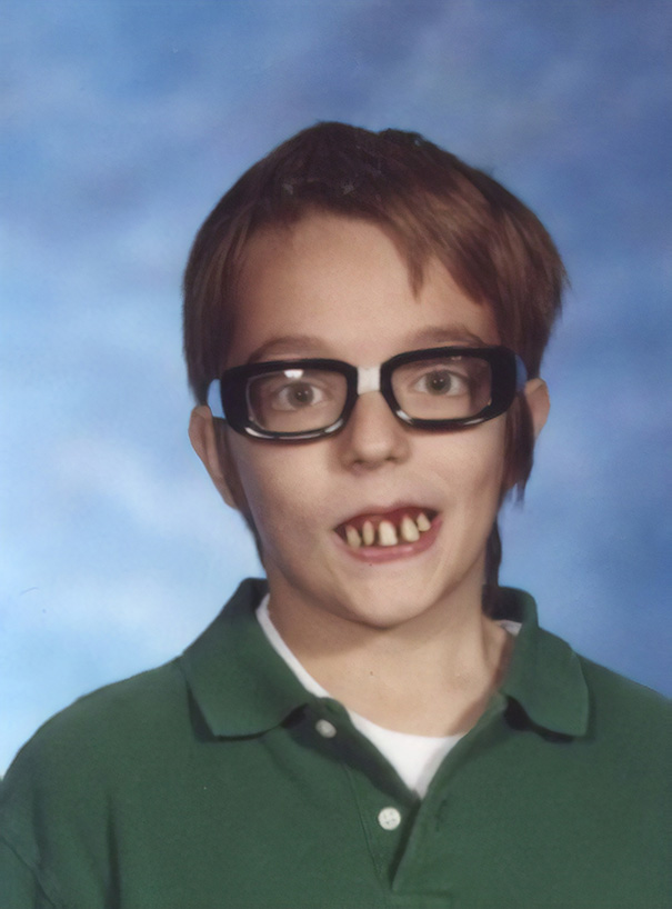 I Wore Fake Glasses And Fake Teeth For My 6th Grade Yearbook Photo To Prank My Mom