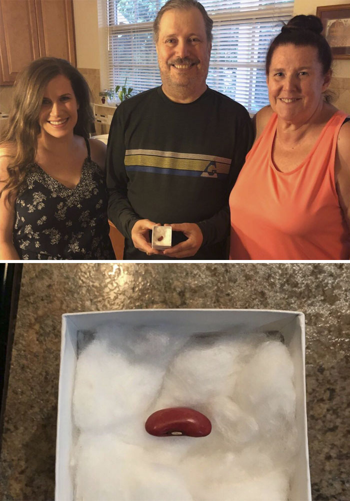 I Gave My Dad A Kidney Bean For Father's Day. It Took Him A Second But He Finally Realized. I'm A Match To Donate A Kidney!