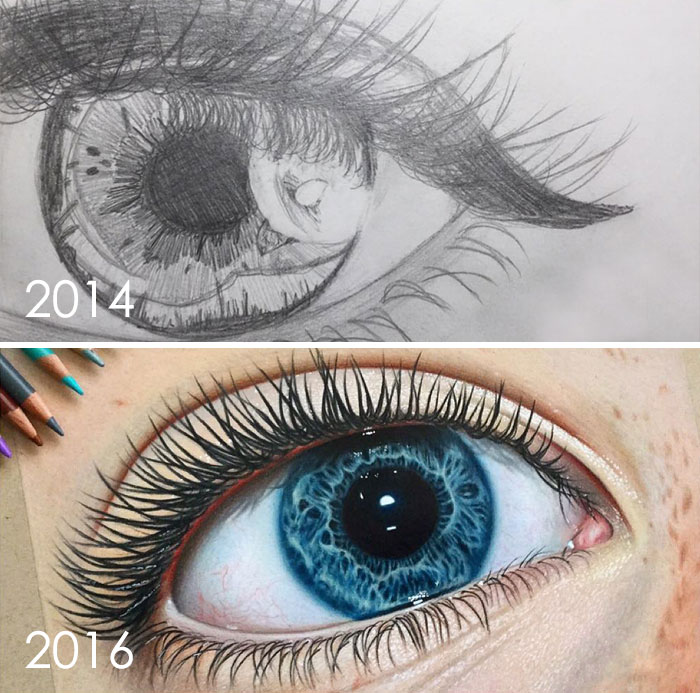 Eye Improvement In 2 Years, 13 To 15 Years Old